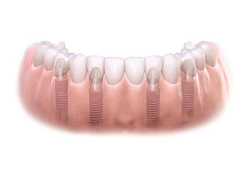 loading of implants